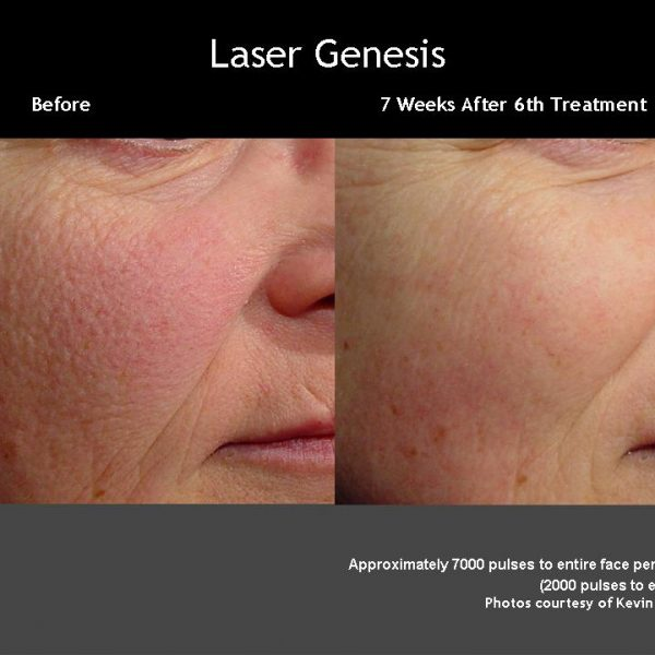 genesis before and after darwin 50 before and after laser genesis photos posted by real doctors read reviews and cost information on laser genesis from patients around the country join join sign in.